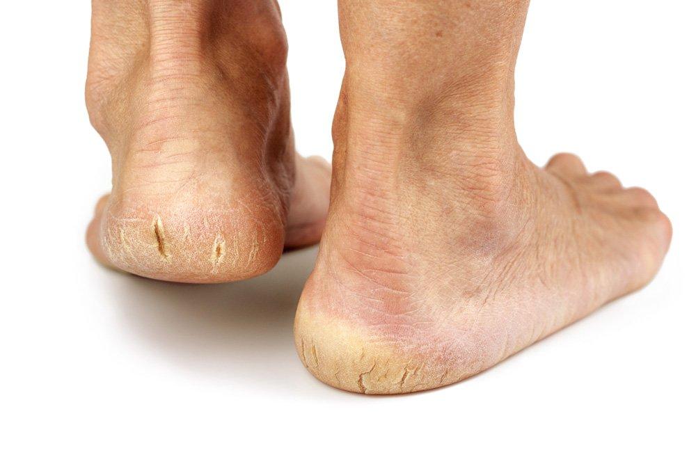 suha koža na nogah